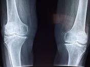 USG Ortopedyczne - kiedy jest nam potrzebne?